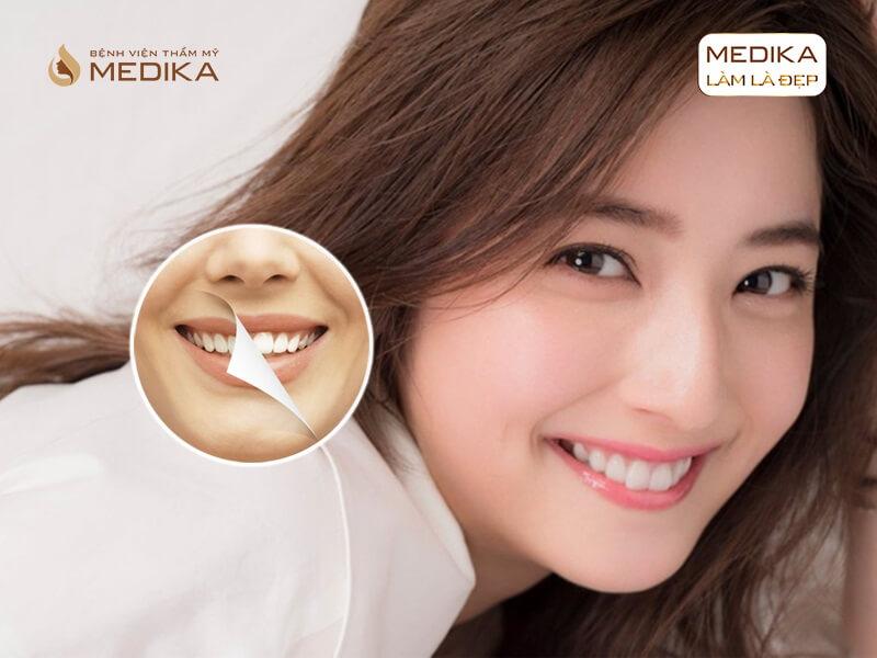 Bao lâu nên thực hiện tẩy trắng răng bằng Laser ở nha khoa MEDIKA?