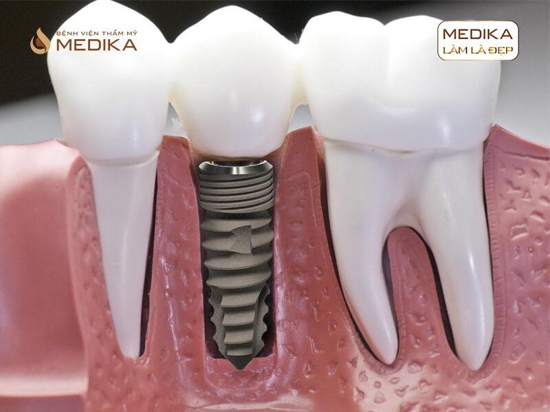 Bị mất răng khôn có cần cấy ghép răng Implant hay không nha khoa MEDIKA?