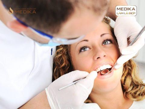 Bị mất răng khôn có cần cấy ghép răng Implant hay không?