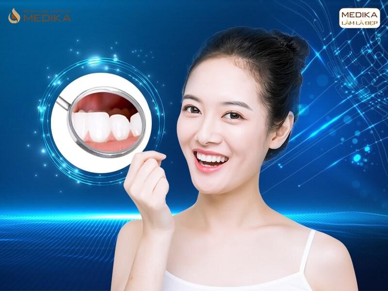 Bọc răng sứ thẩm mỹ có thật sự hết hô ở nha khoa MEDIKA?