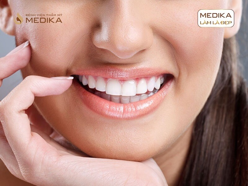 Cấy ghép răng Implant như thế nào cho đảm bảo ở nha khoa MEDIKA
