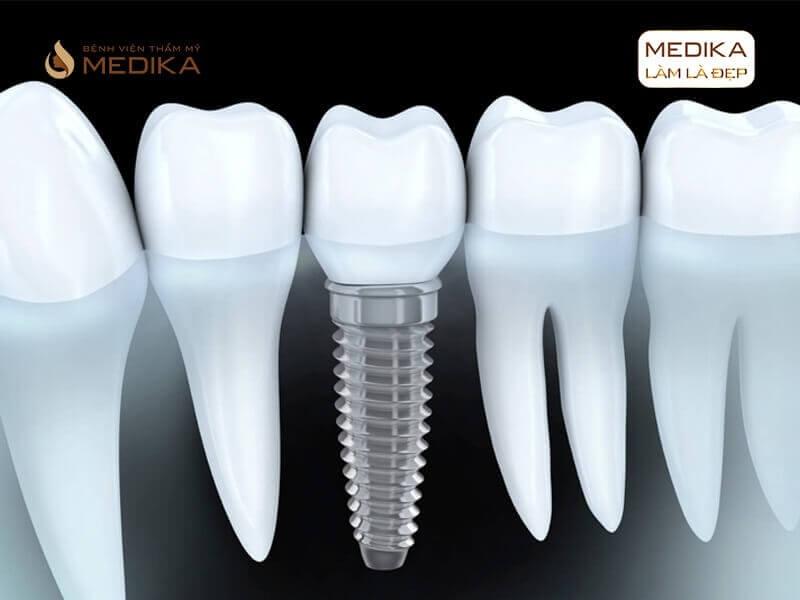 Cấy ghép răng Implant như thế nào cho đảm bảo tại nha khoa MEDIKA