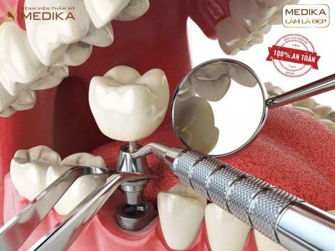 Kết hợp nhổ răng và cấy ghép răng Implant trong 1 lần được không?
