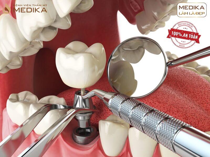 Kết hợp nhổ răng và cấy ghép răng Implant trong 1 lần được không ở nha khoa MEDIKA?