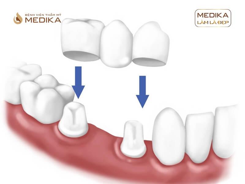 Khi nào bọc sứ thẩm mỹ phải chữa tủy răng tại nha khoa MEDIKA