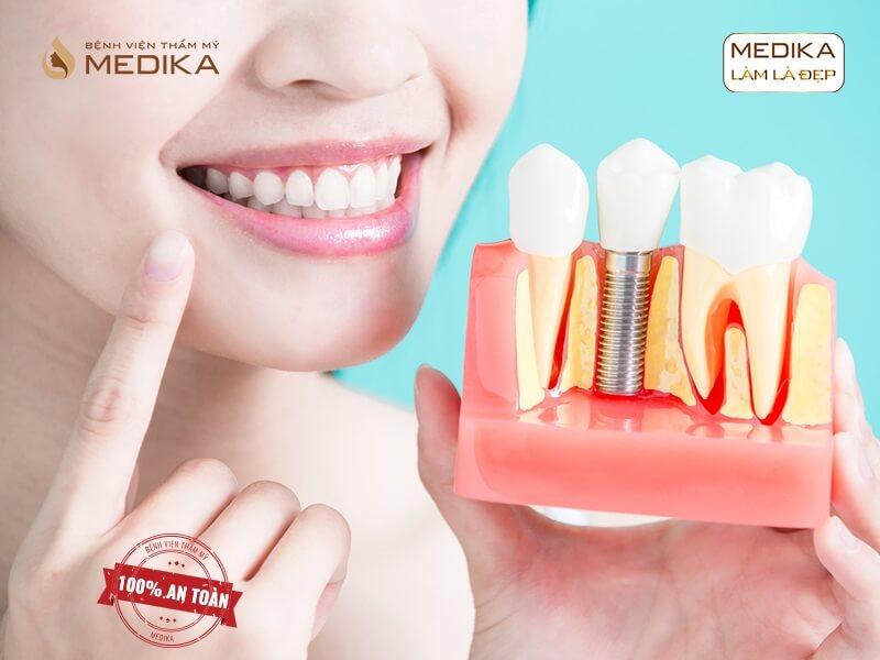 Làm sao để tránh nhiễm trùng sau khi cấy ghép răng Implant ở nha khoa MEDIKA