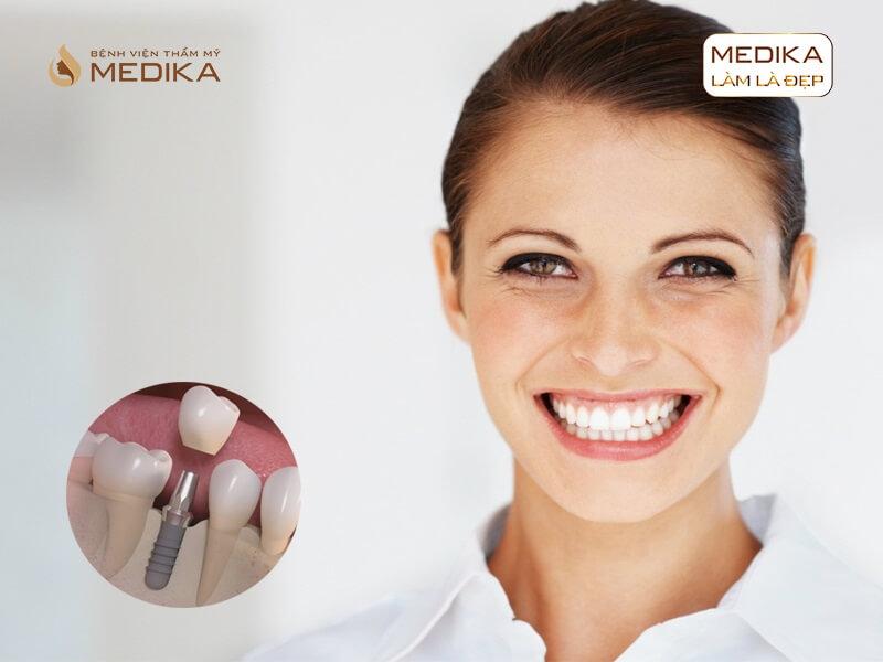 Lưu ý sau khi thực hiện cấy ghép Implant ở nha khoa MEDIKA