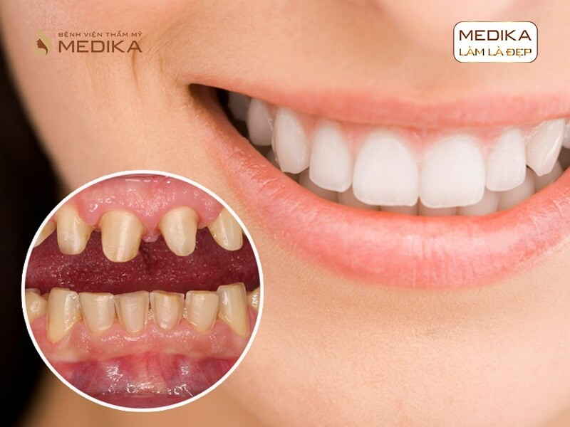 Nên trám răng hay bọc sứ thẩm mỹ nha khoa MEDIKA?