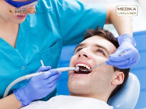 Nên trám răng hay bọc sứ thẩm mỹ?
