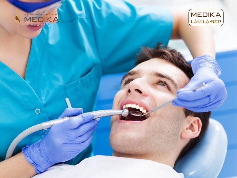 Nên trám răng hay bọc sứ thẩm mỹ ở nha khoa MEDIKA?