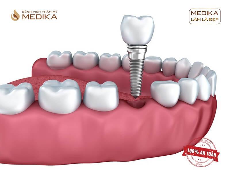 Những biến chứng có thể gặp khi cấy ghép Implant không đúng kỹ thuật ở nha khoa MEDIKA