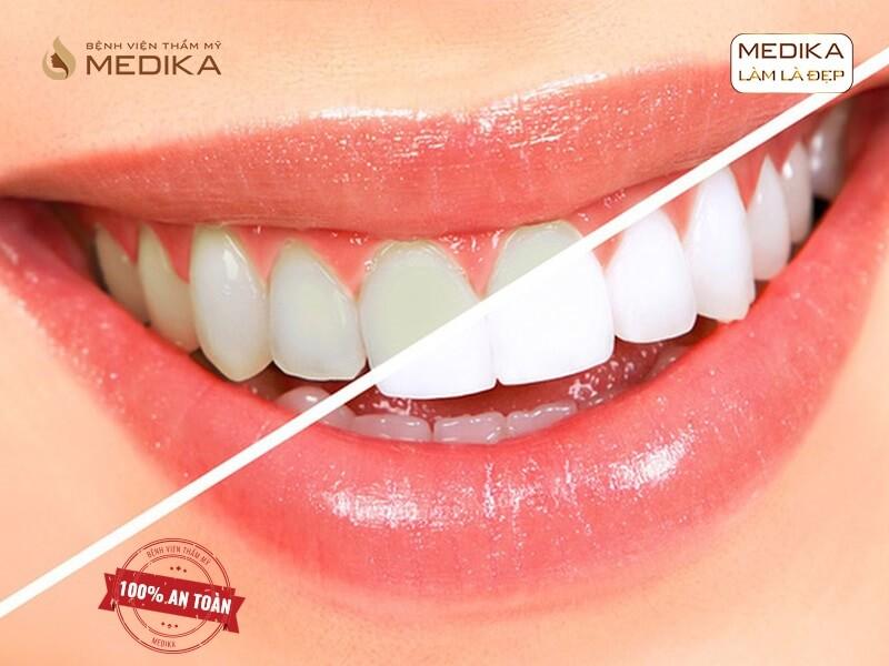 Những thực phẩm nên kiêng sau khi tẩy trắng răng bằng Laser nha khoa MEDIKA