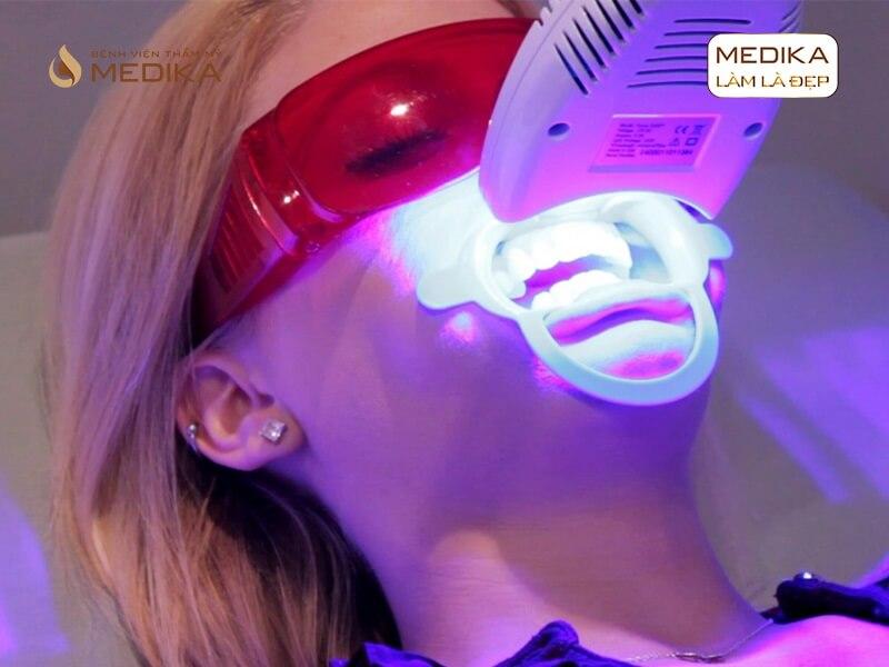 Tẩy trắng răng bằng Laser ai nên, ai không nên nha khoa MEDIKA?