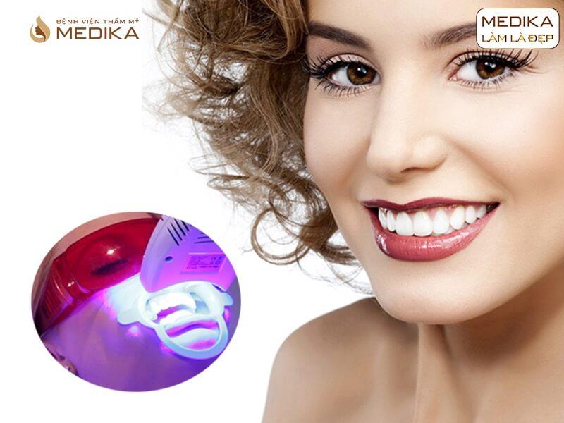 Tẩy trắng răng bằng Laser ai nên, ai không nên ở nha khoa MEDIKA?