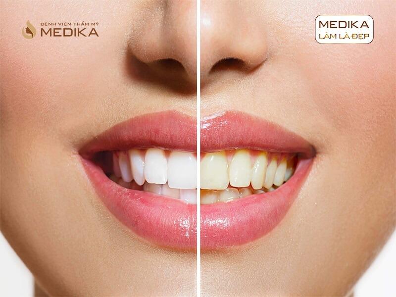 Tìm hiểu về phương pháp tẩy trắng răng bằng Laser tại nha khoa MEDIKA