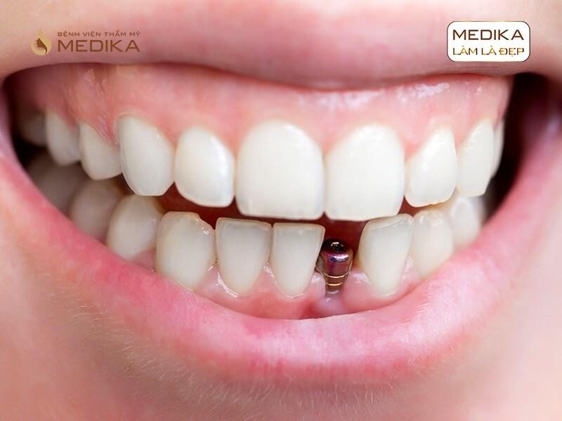 Vấn đề sử dụng thuốc sau khi cấy ghép Implant nha khoa MEDIKA